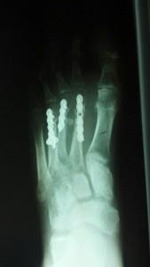 Nothing like screws in the foot