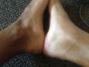 Jordan McNamara's swollen foot